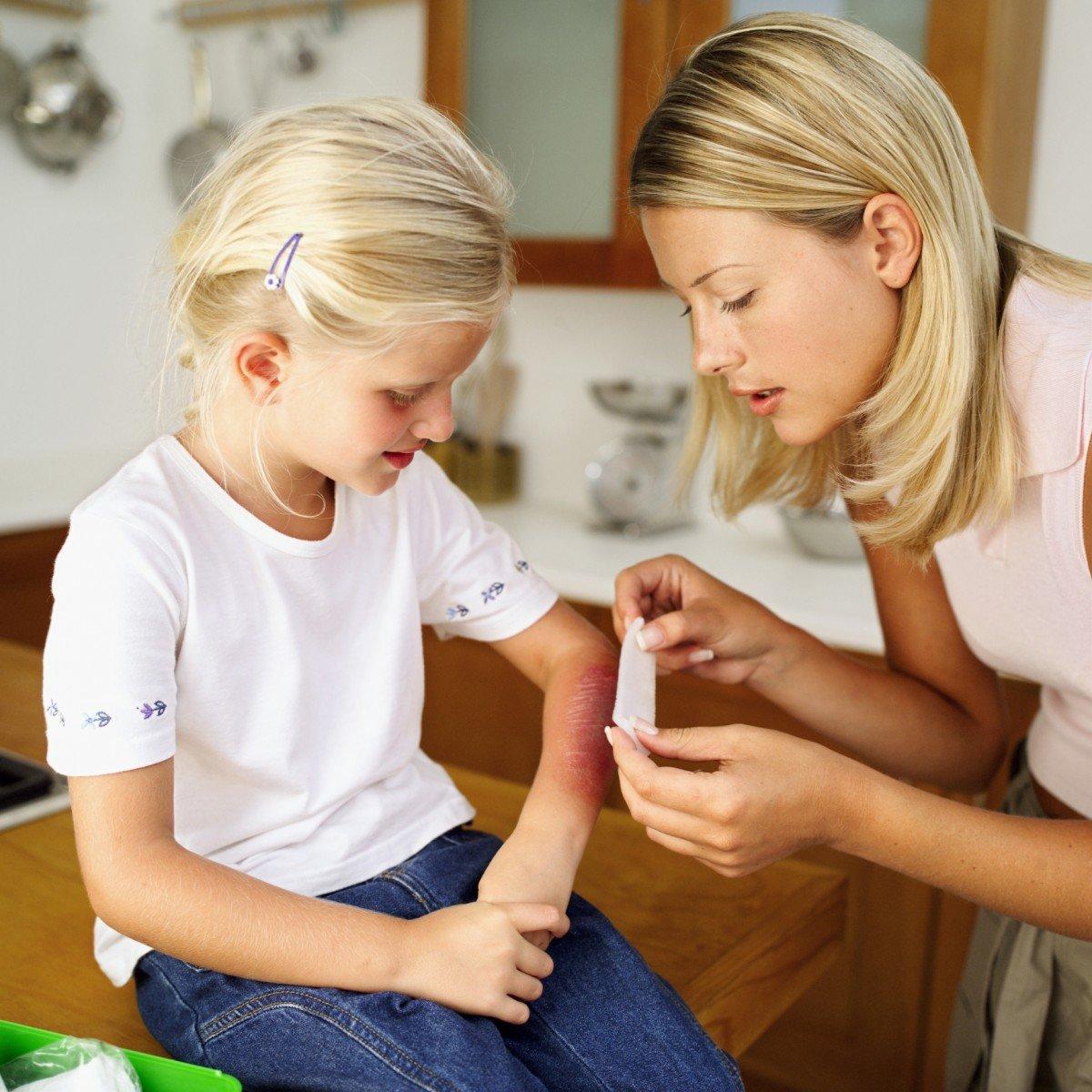 Лечение детского ожога
