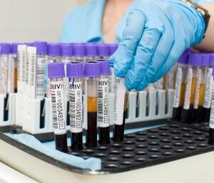 Сдача анализа крови является базовым исследованием