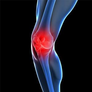 Лечение артрита начинается с ликвидации воспаления