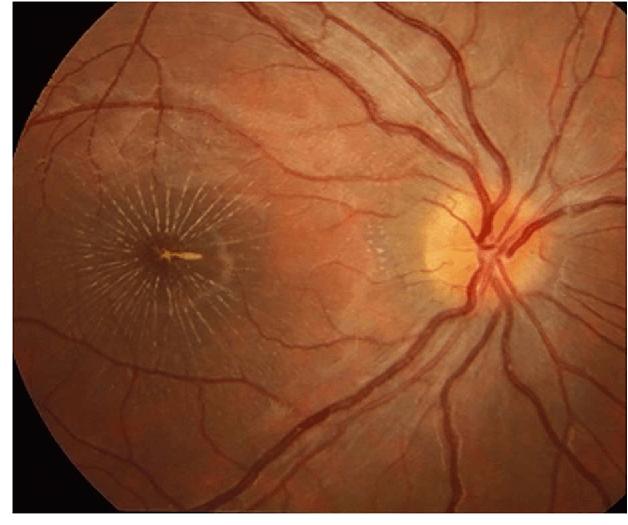 Неврит глазного нерва