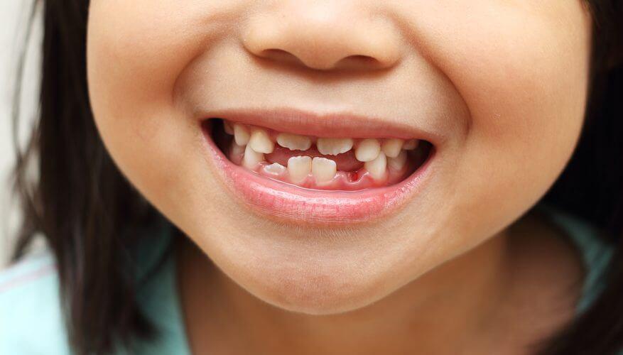 Особенности смены коренных зубов