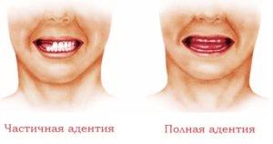 Полное отсутствие зубов с рождения