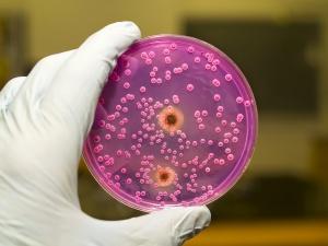 Существует множество бактерий, приводящих к расстройству кишечника