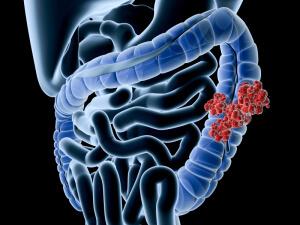 Нарушение микрофлоры кишечника возникает из-за определенных факторов