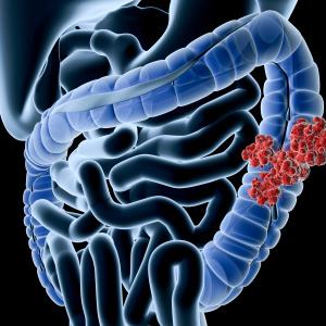 Симптомы кандидоза кишечника: как вовремя их распознать?