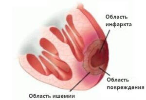 Как распознать инфаркт миокарда