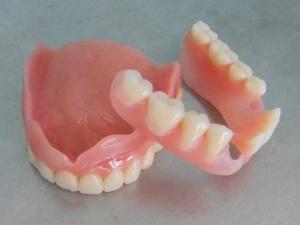 Как ухаживать за съемными зубными протезами: целесообразность выбора