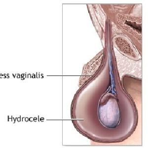 Как определяется водянка у мальчиков, почему возникает и какими методами её необходимо лечить