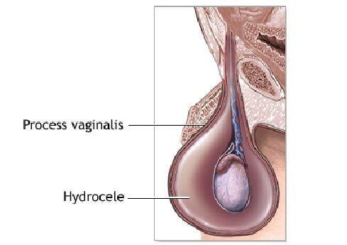 metod-uvelicheniya-spermi-v-yaichkah
