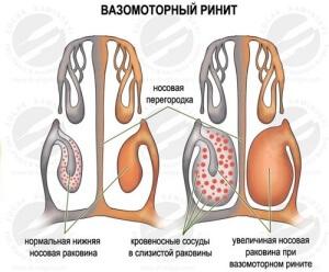 Вазомоторный ринит при беременности: причины, первые признаки, методы борьбы с заболеванием
