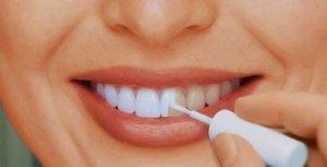 Выбор лаков для зубов