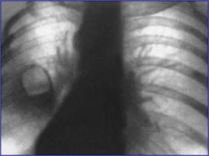 Пневмофиброз на снимке