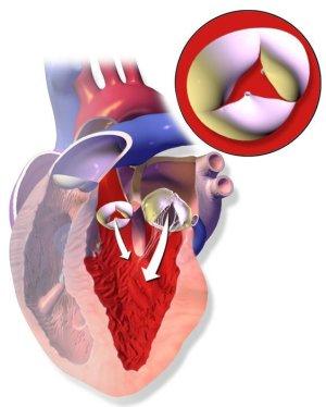 Аортальная недостаточность: симптомы и своевременная помощь сердцу