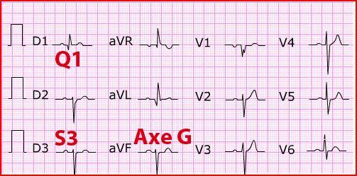 Отклонение электрической оси сердца вправо: от чего зависит, чем грозит и что делать
