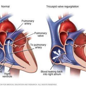 Регургитация трикуспидального клапана 1-й степени: причины возникновения и способы лечения