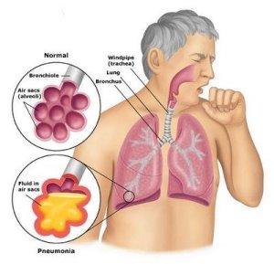 Пневмония как осложнение