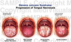 Процессы происходящие во время болезни