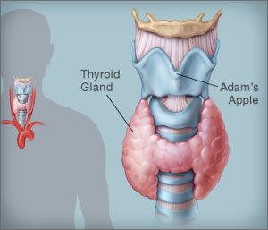 Тиреоидит как симптом переизбытка