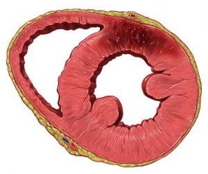 Как выглядит микроинфаркт