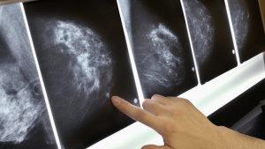 Выявление рака на рентгене