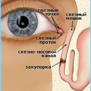 Воспаление слезного мешка, лечение: методики избавления от патологий с помощью традиционных и народных средств