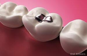 Пломбы для зубов: спасение от дырок и осколов