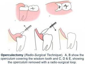 Процесс оперативного лечения