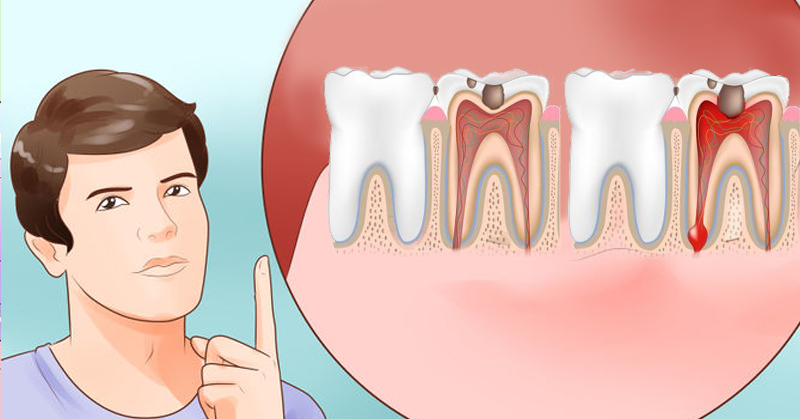 Как облегчить в домашних условиях зубную боль