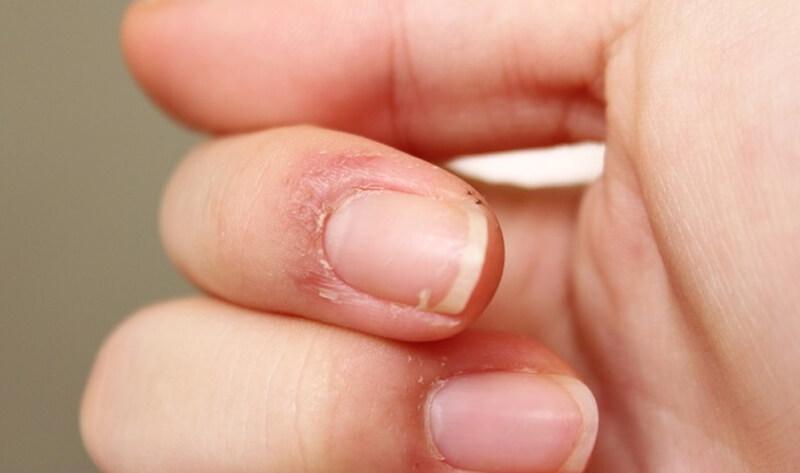 Почему лопается кожа на пальцах рук возле ногтей