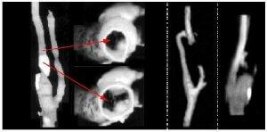 Обследование атеросклероза артерий нижних конечностей
