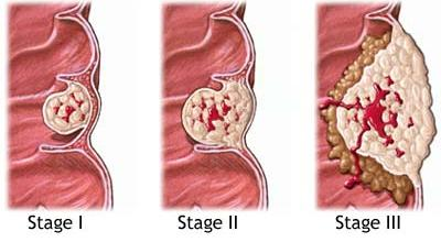 Рак горла: причины и симптомы, клиническая картина при разных стадиях