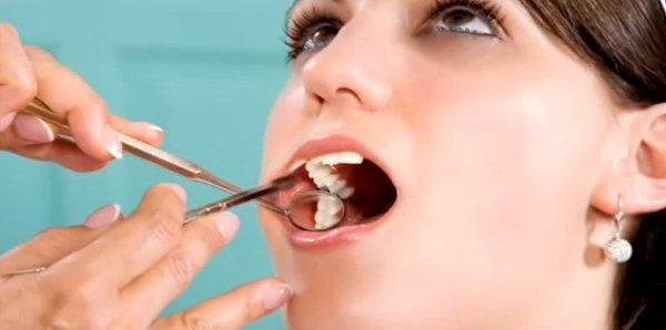 Как в домашних условиях предотвратить зубную боль