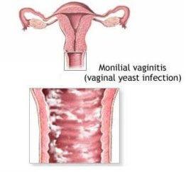 kandidoz-vaginalniy-i-menstruatsiya