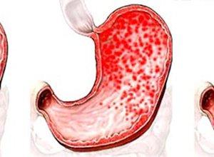 Симптомы гастродуоденита