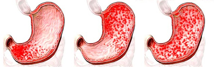 Признаки гастродуоденита: как понять, что ты болен и вовремя приступить к лечению