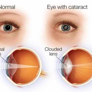 Причины и симптомы катаракты, лечение катаракты медом и другими натуральными средствами