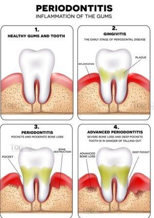 Что происходит с зубами