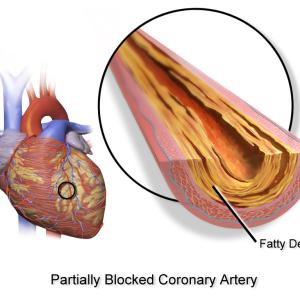 Атеросклероз аорты коронарных артерий: причины, симптомы и лечение данного заболевания