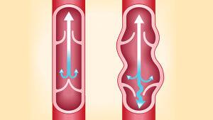 Воспаление вен