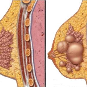 ФКМ с преобладанием фиброзного компонента: признаки патологии, причины, методы диагностики и терапии