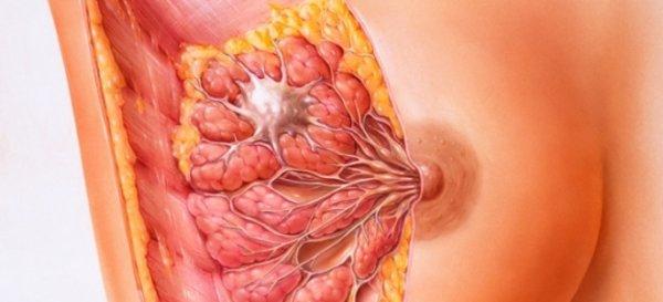 Питание при фиброзно-кистозной мастопатии: советы диетологов