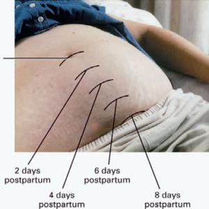 Через сколько сокращается матка после родов: как протекает, возможные отклонения от сроков, варианты лечения