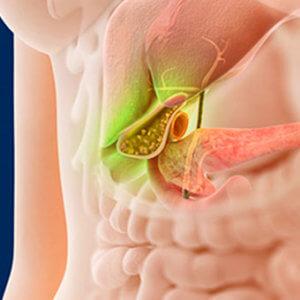 Полип желчного пузыря: симптомы, причины образования, виды, признаки, диагностика и лечение
