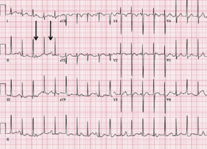 Тахикардия на кардиограмме