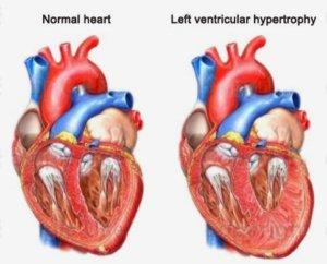 Гипертрофия желудочка сердца