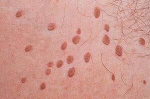 Как выглядит вирус папилломы?