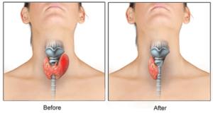 Частичное удаление щитовидки