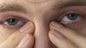 Не растирать глаза