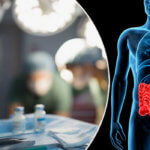 Операции на кишечнике