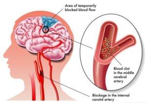Хроническая ишемия головного мозга: лечение, стадии, симптомы и причины